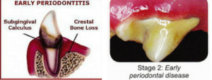 Grade 2 Dental Disease